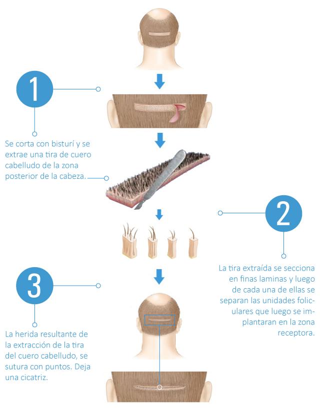 Técnica FUSS de transplante capilar