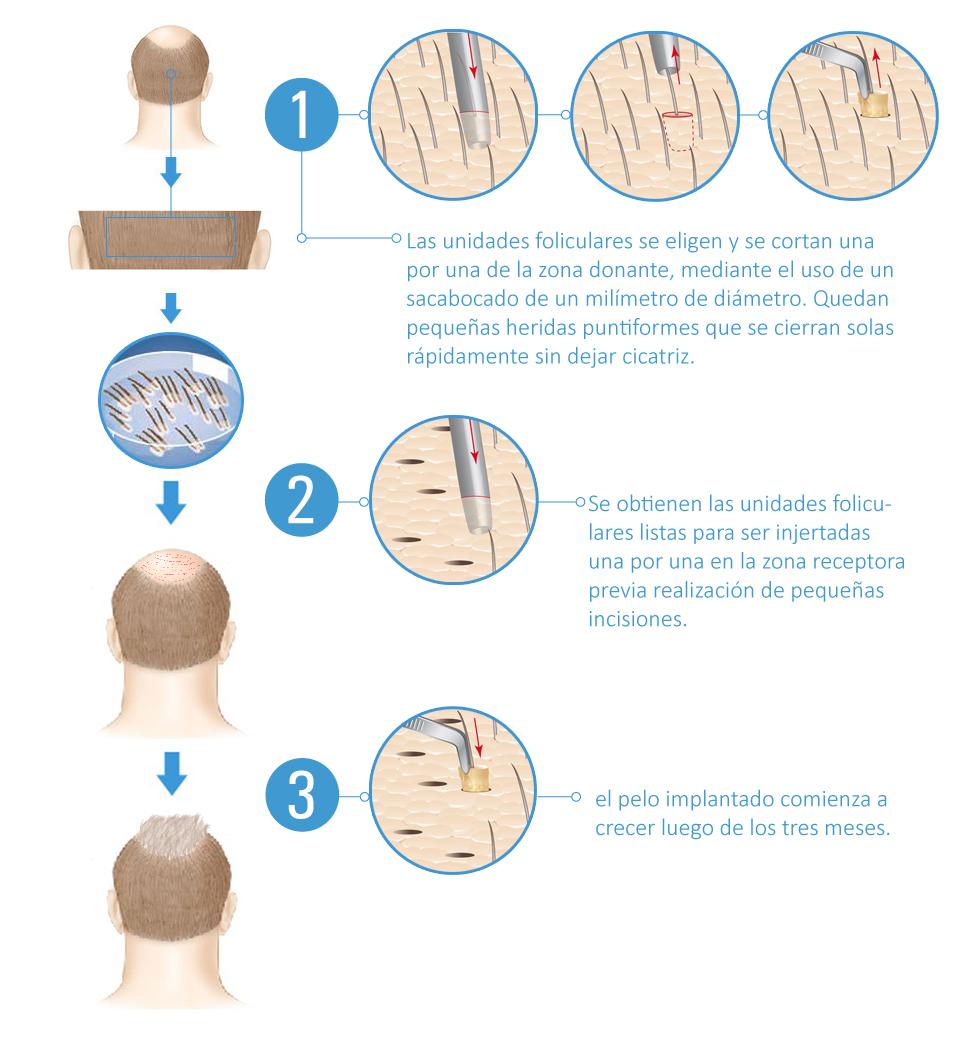 Técnica FUE de extracción y posterior implantación de las unidades foliculares