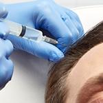 Plasma Rico en Plaquetas y caída de cabello