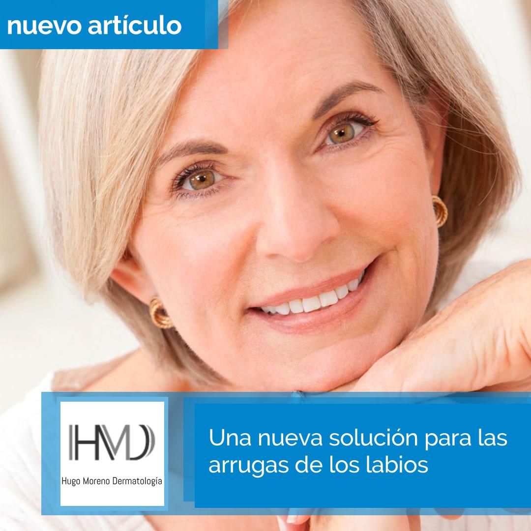 Una nueva solución para las arrugas de los labios